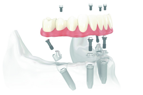 all on 4 service at Pine Belt Periodontics, PLLC