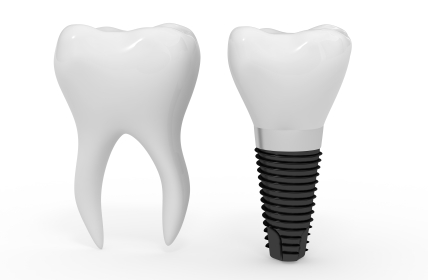 dental implant graphic.